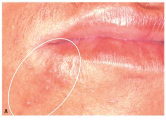 herpes labial fotos 4
