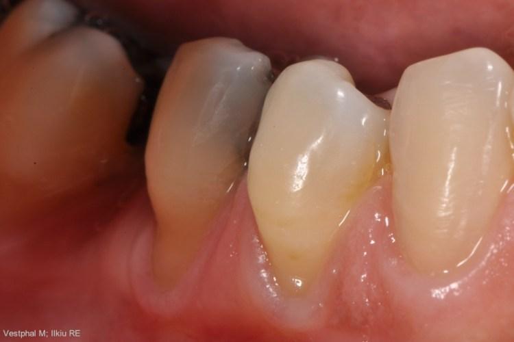 Arquivos Dentes Sensiveis Dr Wilson Correia