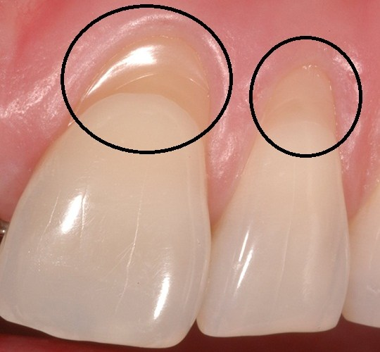 retração gengival dentes sensíveis