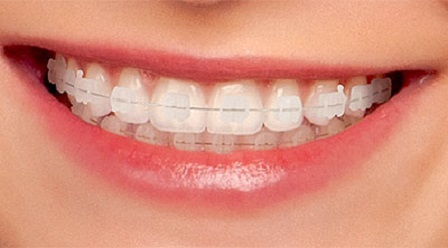 aparelho estético ortodontia
