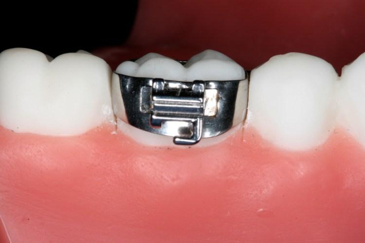 anel do aparelho dentário