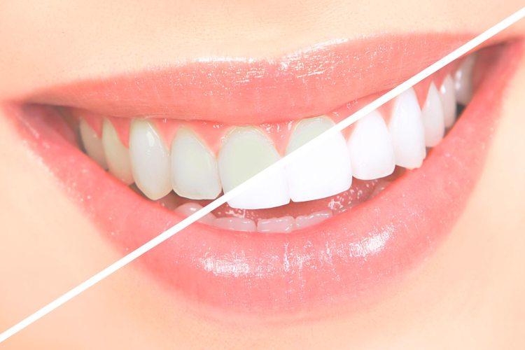 açafrão clareia os dentes