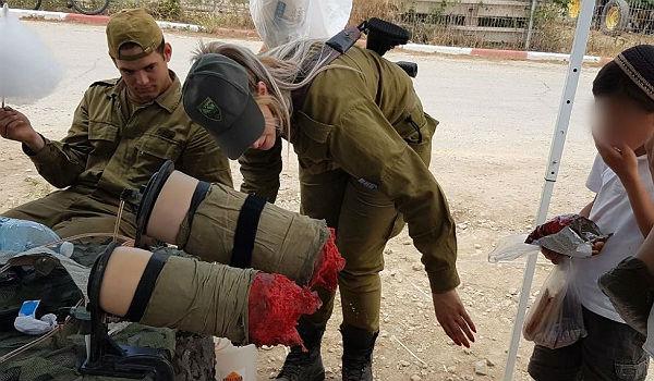 IDF fake wounds