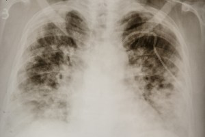 Health officials: Delta is eating lungs of the unvaccinated