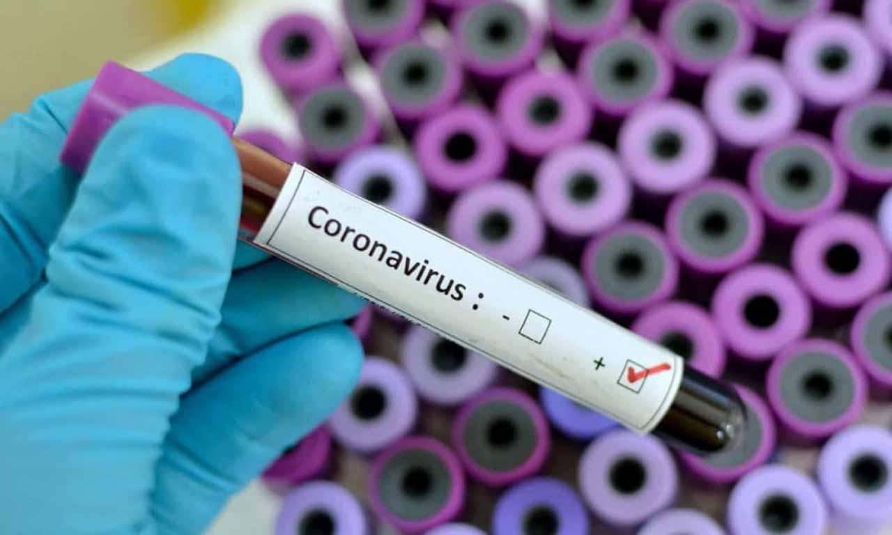 Two military men among new Coronavirus cases in Bayelsa