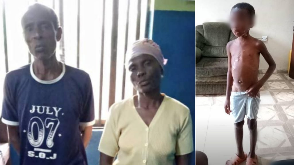 Ogun police arrest couple for allegedly burning 7-yr-old granddaughter with hot robber
