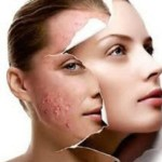 How to cure and control acne through diet