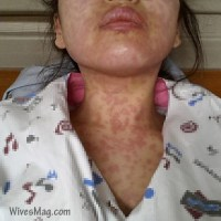 Causes and best Home remedies for Urticaria or Hives
