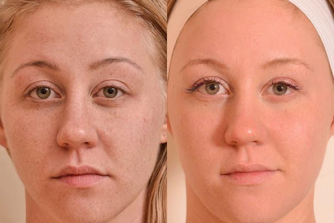 Top Ten Treatments for Sun Damaged Skin
