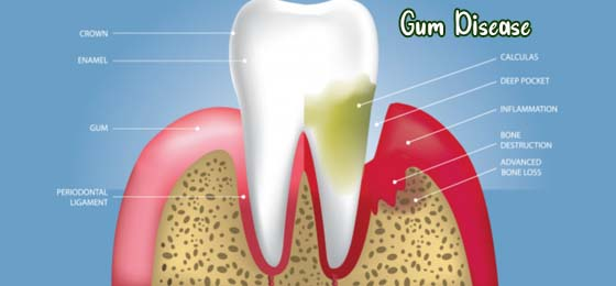 Everything To Know About Gum Disease