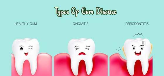 types-of-gum-disease