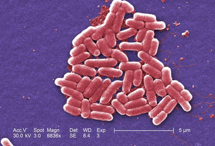E. coli under electron microscope_171466