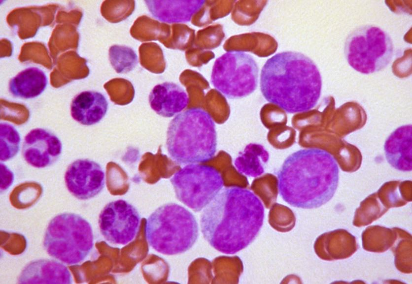Leukemia cancer cells_307277