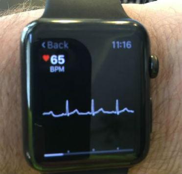 apple-watch_227960