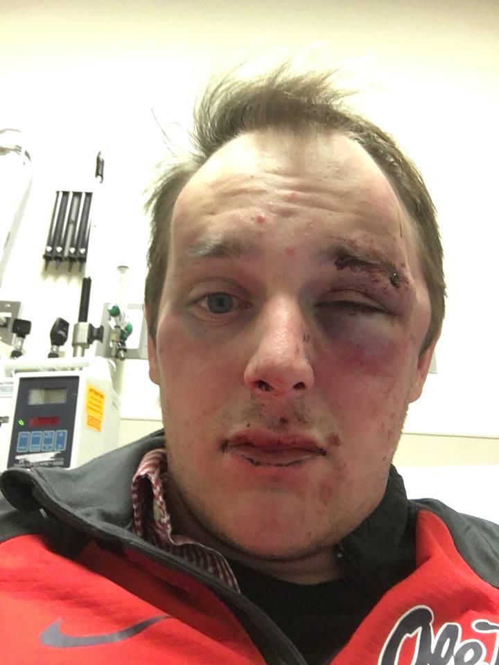 alleged assault_98893