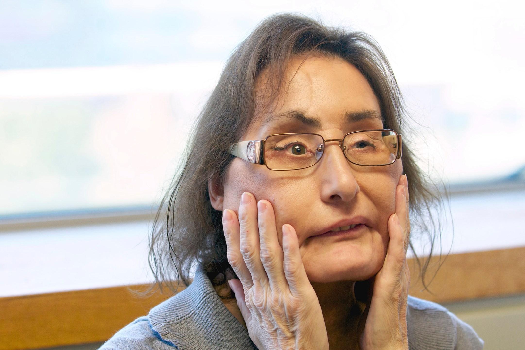 Connie Culp 1st Us Partial Face Transplant Recipient