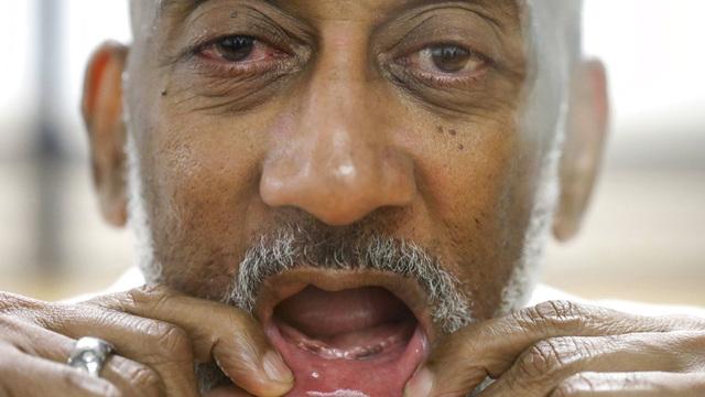 Texas Prisons Dentures_1537844052592