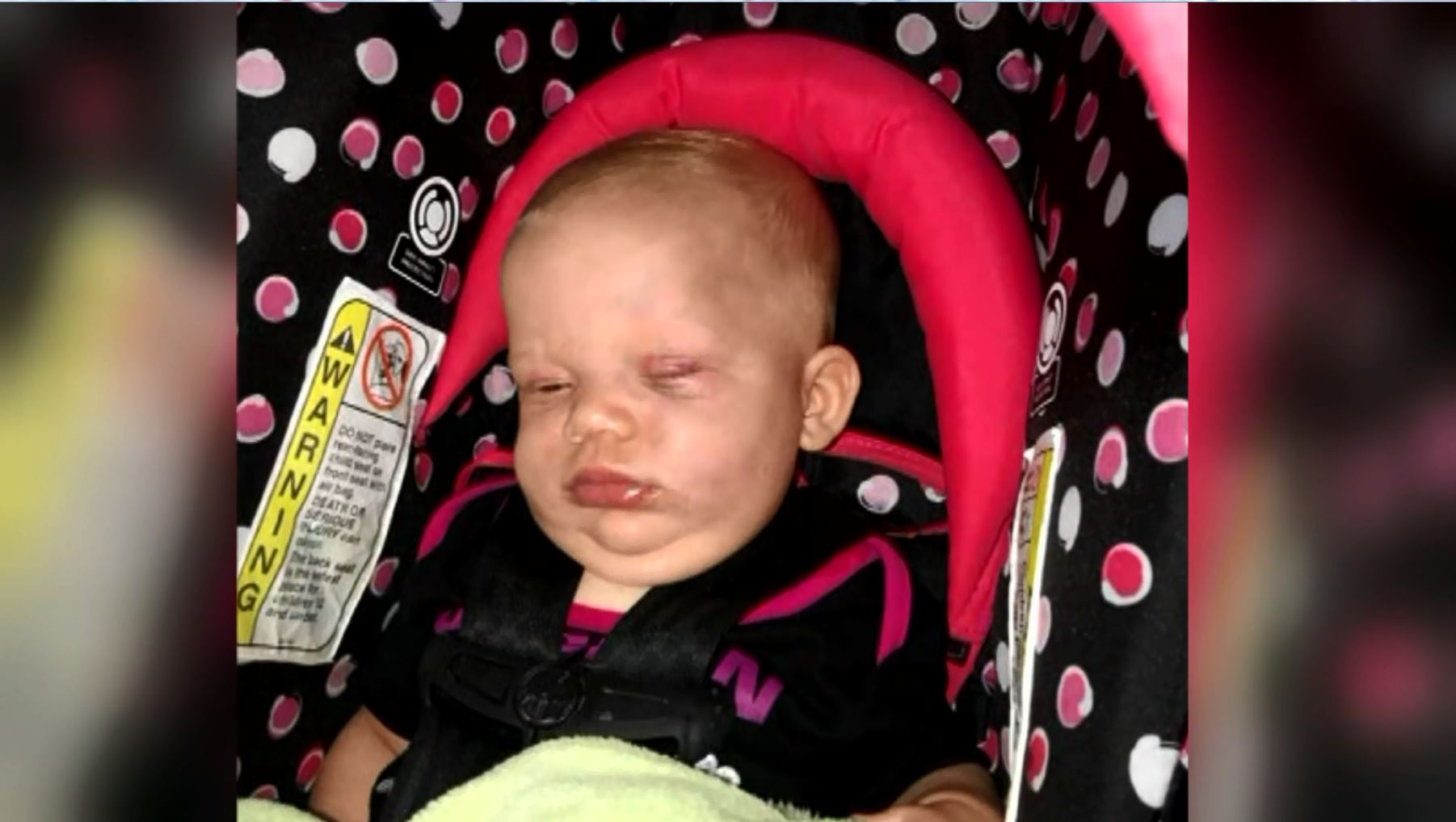 Parents say babysitter to blame for 5-month-old's injuries