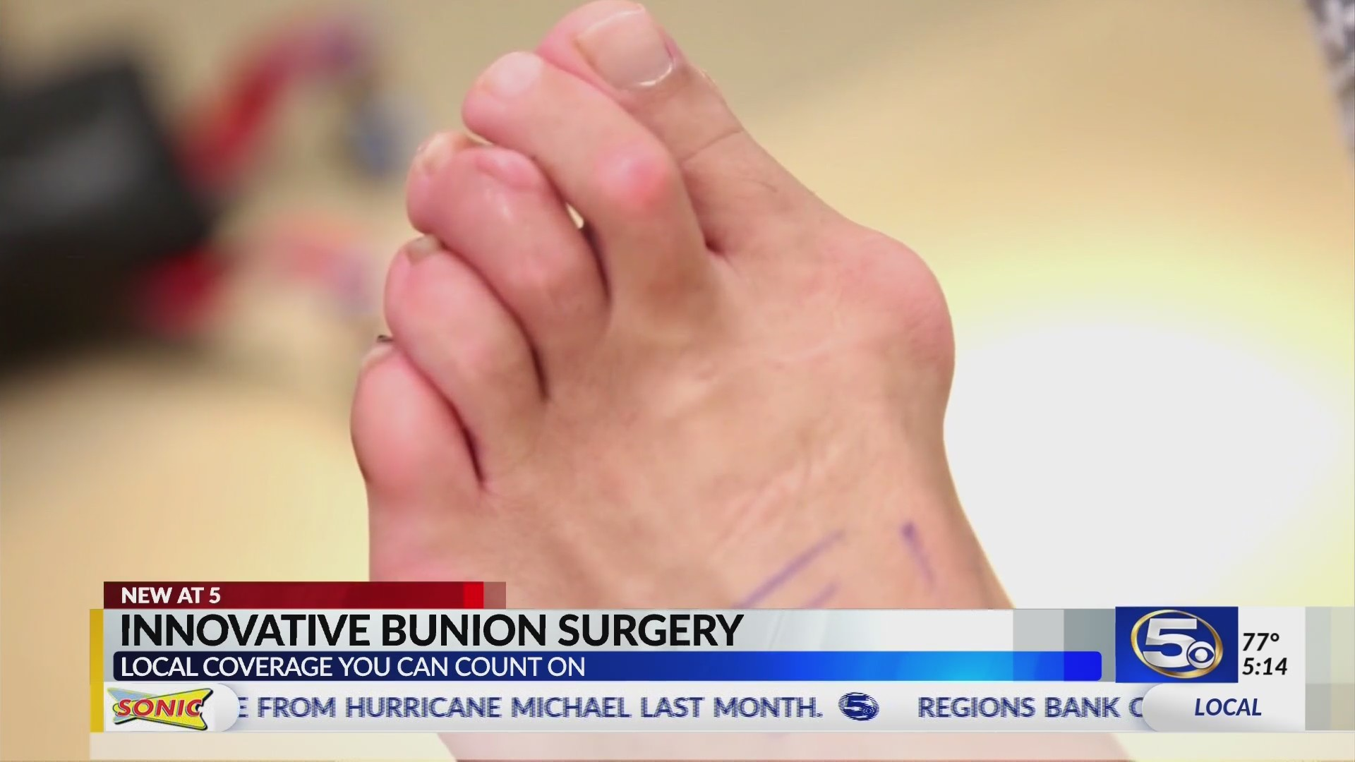 SPECIAL REPORT: New bunion surgery cuts recovery time