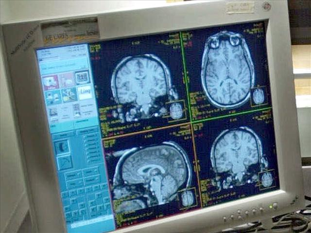 Brain scan_323428