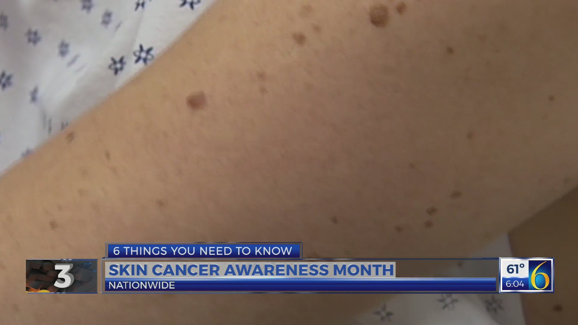 This Morning: Skin Cancer Awareness 1