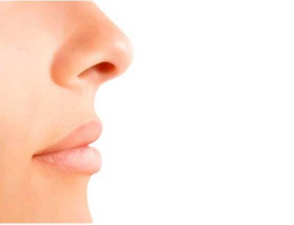 Ρινοπλαστική - Αλλάξτε την εξωτερική εμφάνιση της μύτης με ασφάλεια