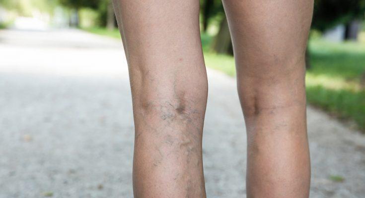 Ανώδυνη και με απόλυτη ασφάλεια η θεραπεία Κιρσών με laser