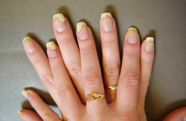 Potential Hazards Of Acrylic Nails