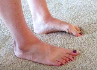 Key Facts About Foot Arch Pain, sudden sharp pain in arch of foot, sharp pain in arch of foot when walking, burning pain in arch of foot, high arch, foot arch pain home remedies, arch pain exercises, foot arch pain not plantar fasciitis, high arch pain,
