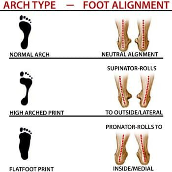Knowing Your Foot Arch Type