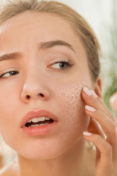 woman with dry skin