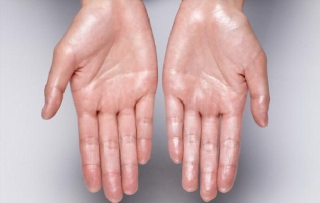 wet hands and weak nails