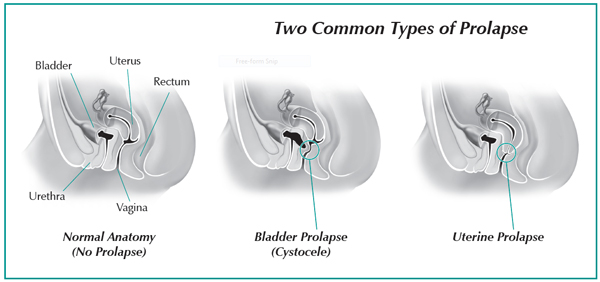 Pelvic Organ Prolapse Women S International Pharmacy