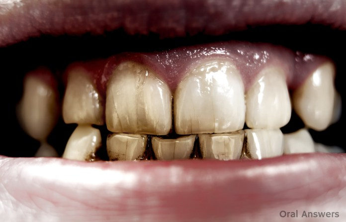 craze_lines_stained_teeth
