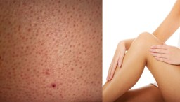How To Easily Remove Skin Tags Moles Blackheads Spots And Warts Womenworking
