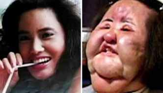 10 Plastic Surgery Gone Wrong Before and After