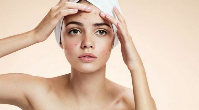 Effective Natural Remedies to Get Rid of Blackheads
