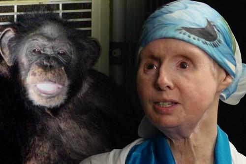 Charla Nash Disturbing Animal Attacks