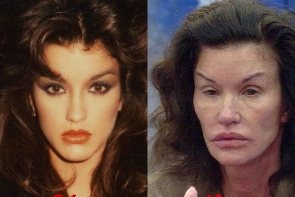 Plastic Surgery Went Horribly Wrong