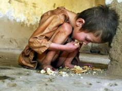 20,000 children die every day due to starvation