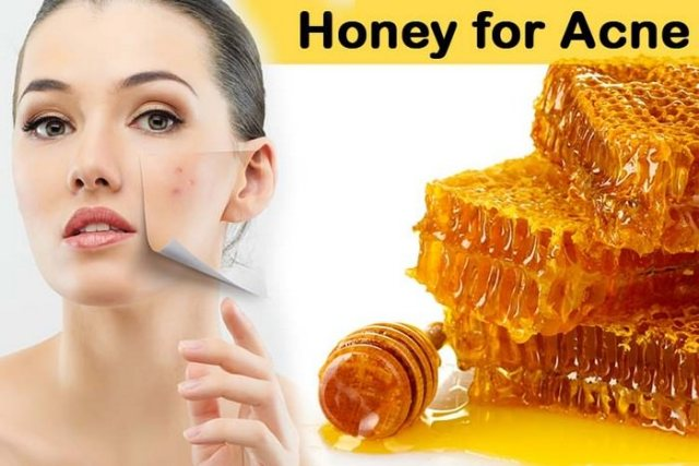 How To Use Honey To Get Rid Of Acne