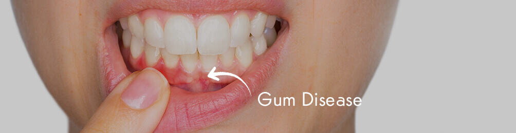 gum diease treatment in guildford, surrey