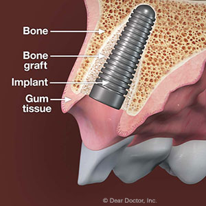 Dental implant treatments for patients with low bone density, explained by Surrey-based implant dentist