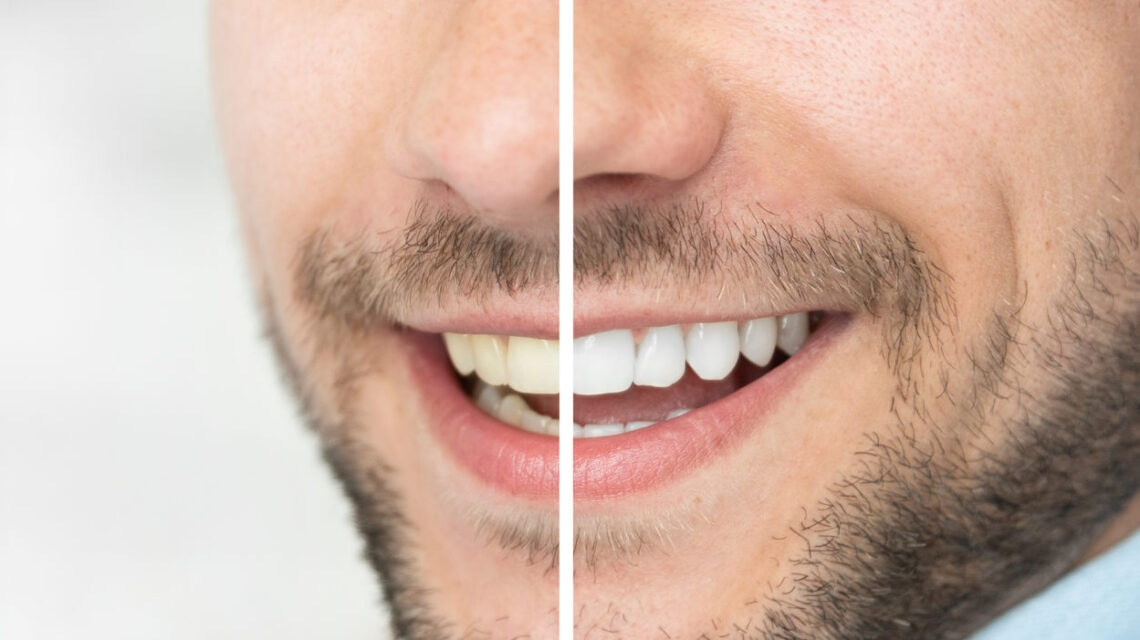 teeth whitening in Guildford Surrey