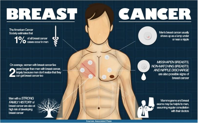 Breast Cancer Can and Does Happen to Men
