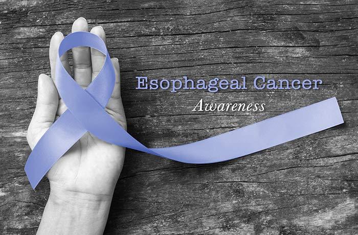 Esophageal-Cancer_1556329749470.jpg