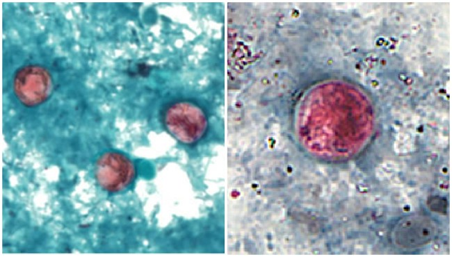 Image Enhanced Image Enhanced Images of Cyclophoric Oocysts shows oocyst from cyclospora cayetanensis stained with safran. (CDC) </p> </figcaption> </figure> </div> <div> <p>  SOUTH HAVEN, Mich. (WOOD) ̵<div class=