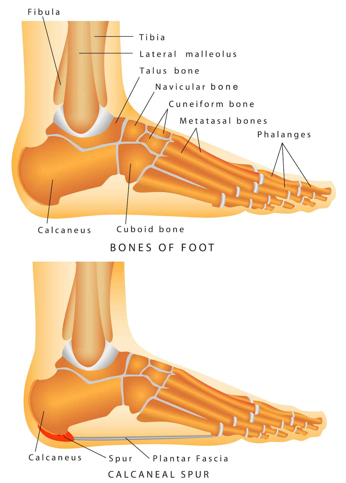 diagram of tibia stress fracture vw wiring alternator sore feet? - best work boots for plantar fasciitis! boots: the boot critic