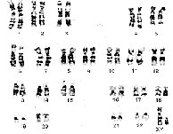 10 Best Images of Karyotype Worksheet Answers Biology