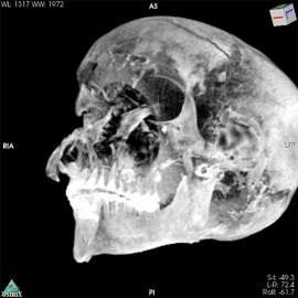A black-and-white image of the CT scan of the pharaoh's skull